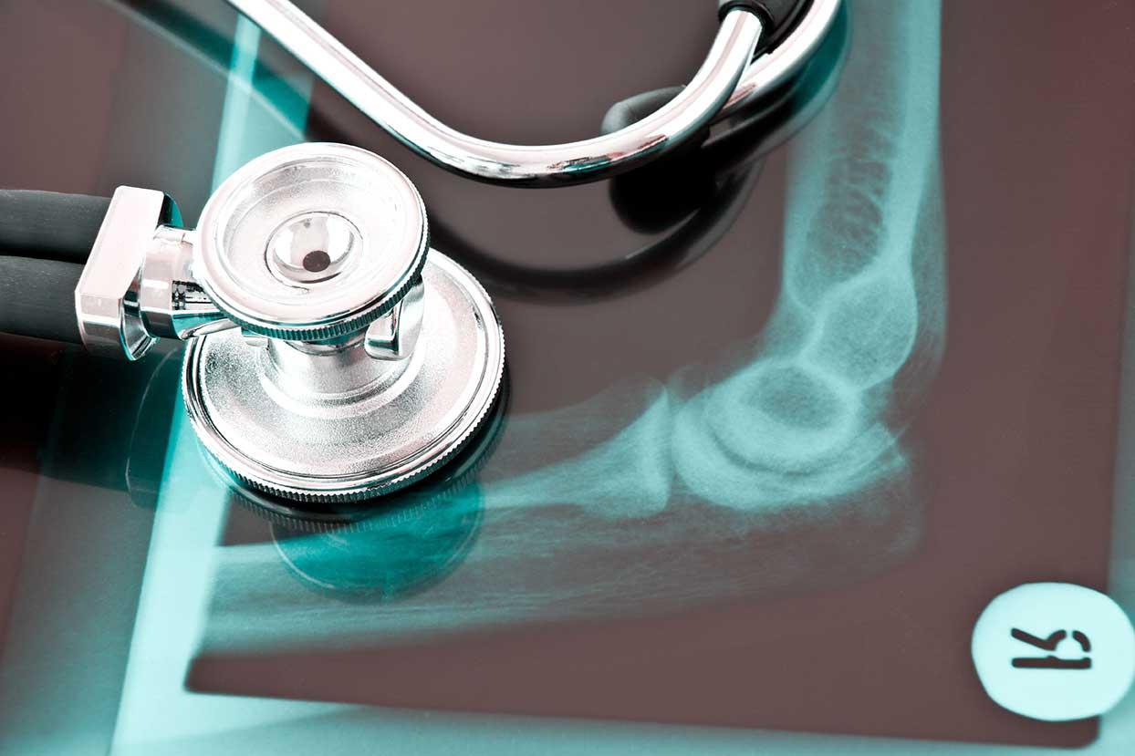 Nahaufnahme eines Stethoskops - Orthopädische Diagnostik Kolbermoor