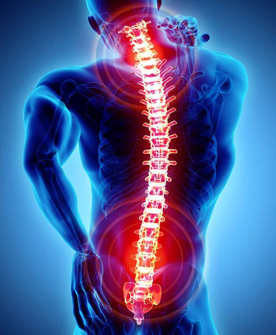 Darstellung Schmerzen an der Wirbelsäule - Schmerztherapie Orthopädie Kolbermoor